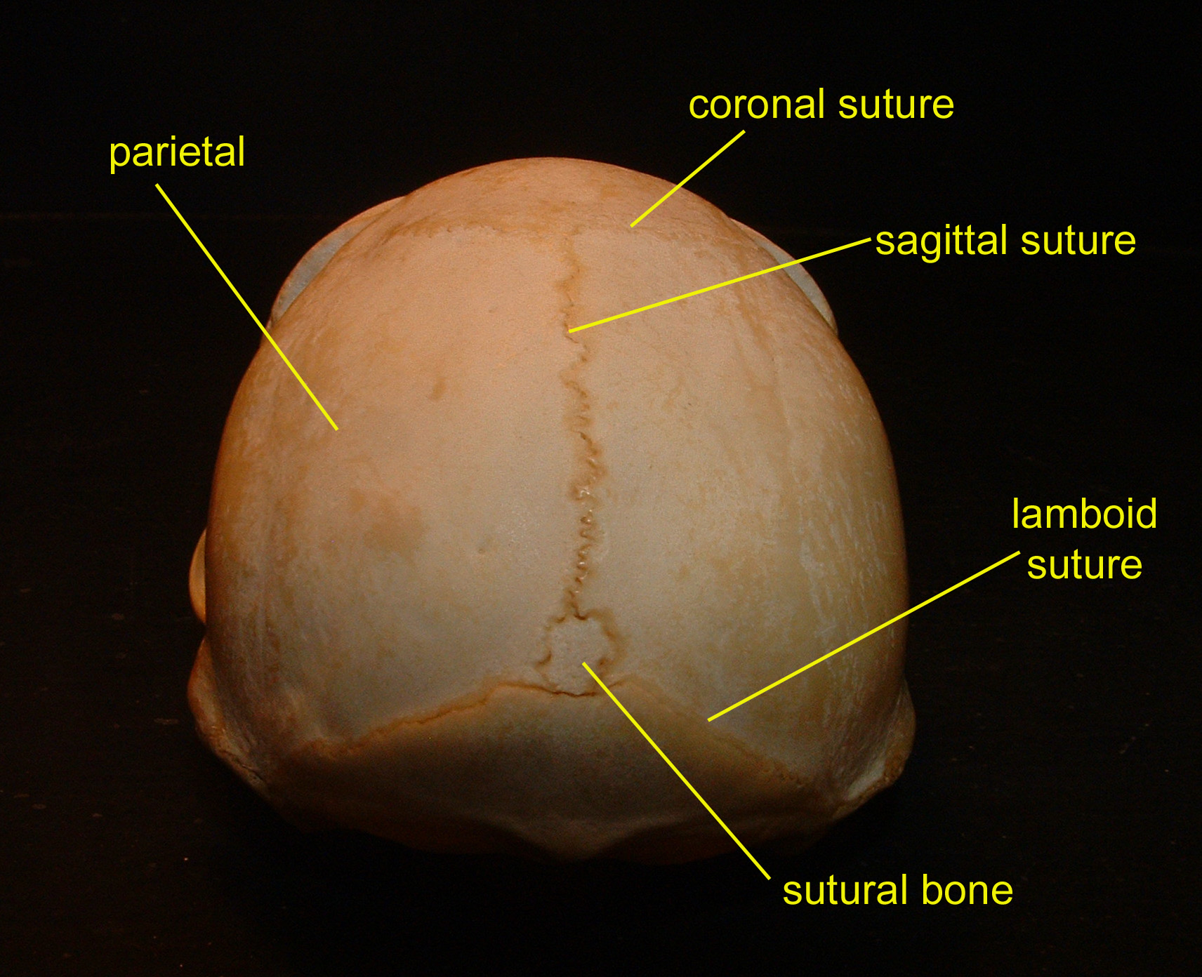 sagittal suture anatomy - HD 1712×1392