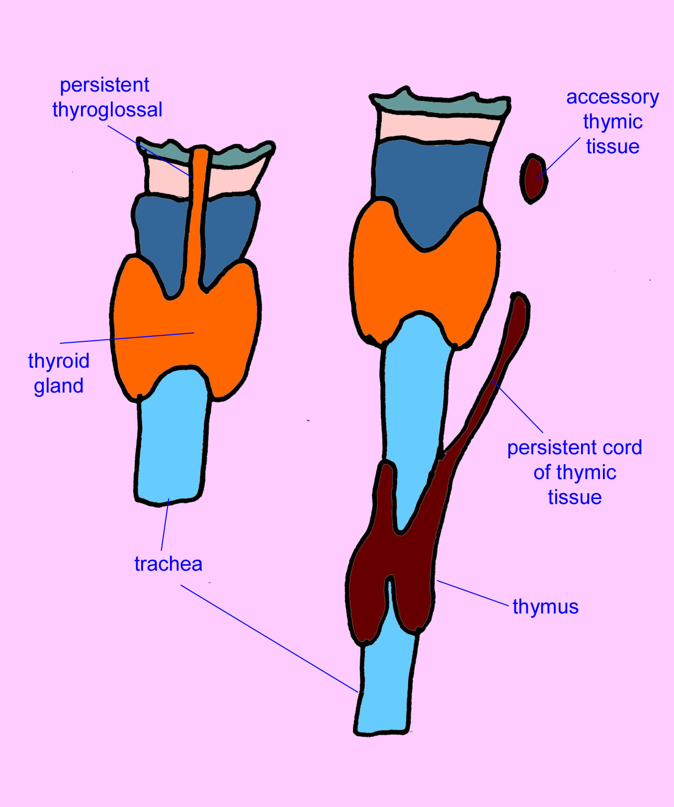 Pathology Outlines Thymic Tissue Within Thyroid Gland