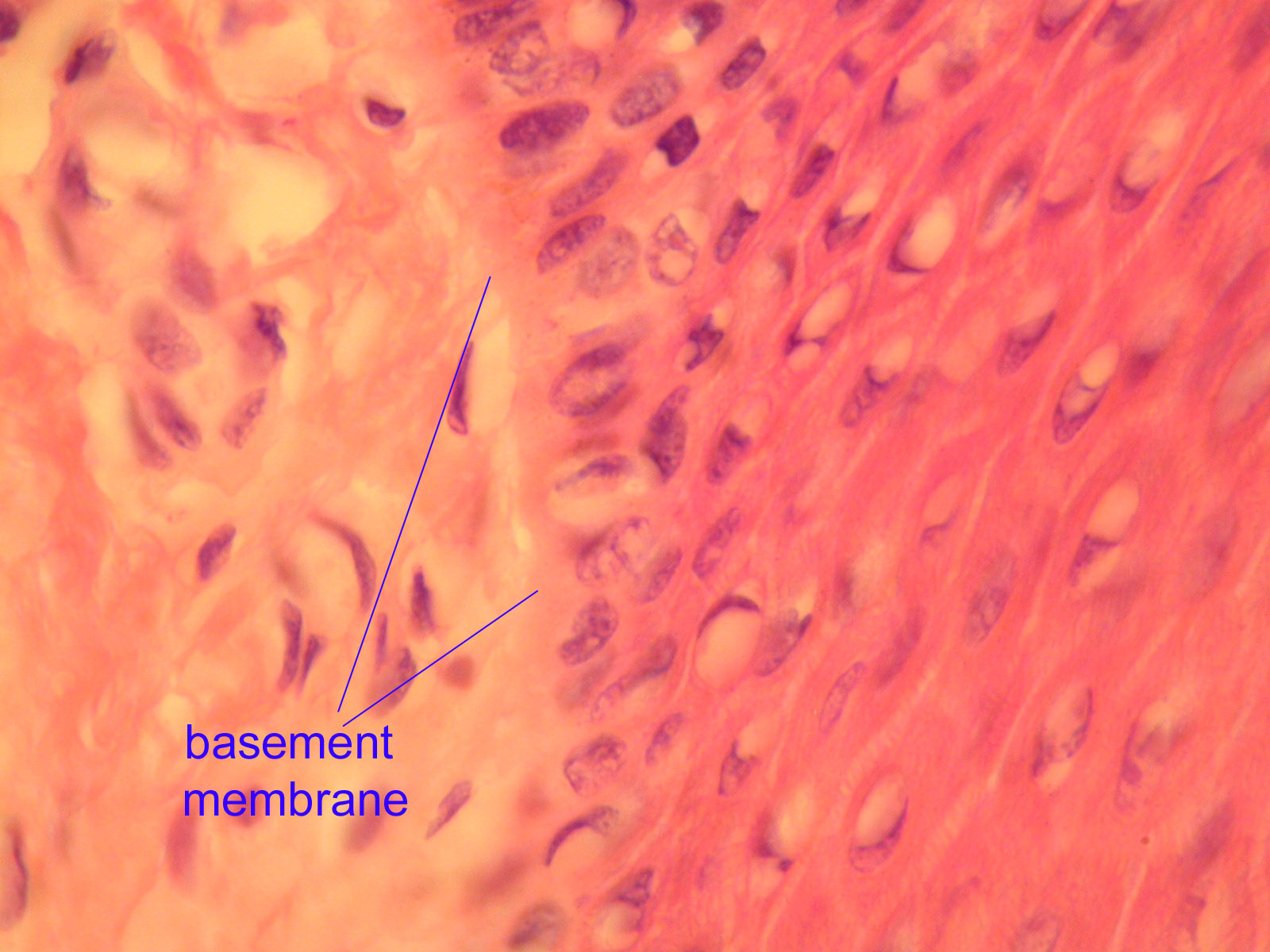 collagen 4 a 2 is used in the basement membrane separating epithelia